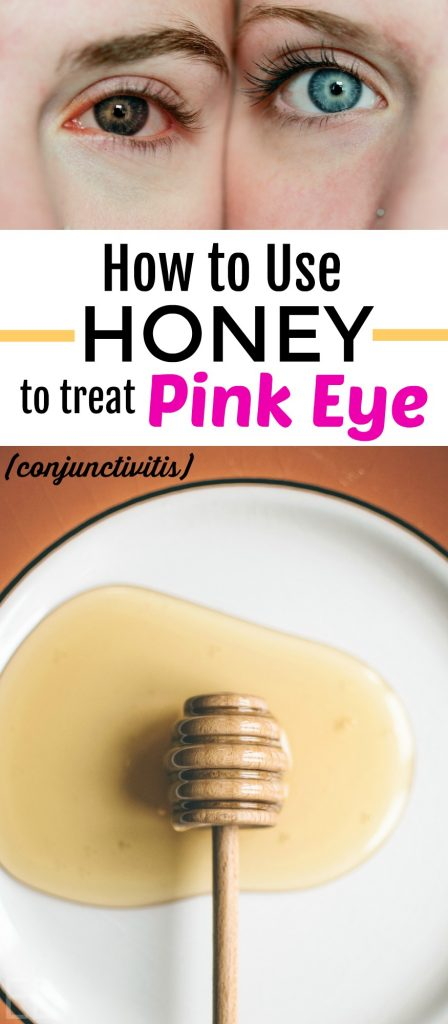 How to Use Honey to Treat Pinkeye (Conjunctivitis) — The best home