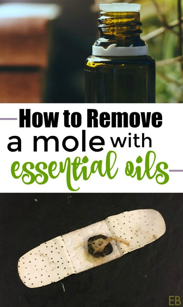 How to Remove Moles and Warts with Essential Oils {with step-by-step method} #moles #moleremoval #essentialoils #EOremedies #howtoremove #herbalremedies