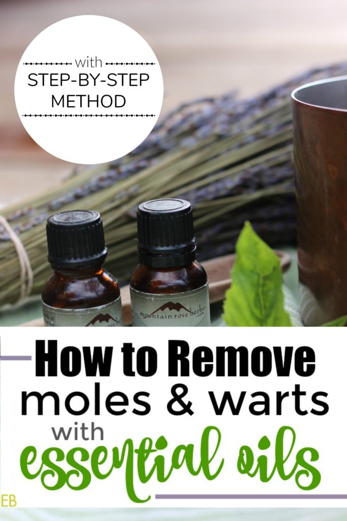 How to Remove a Moles and Warts with Essential Oils