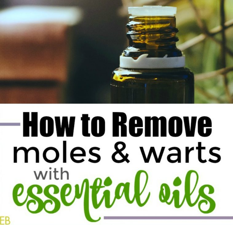 How to Remove Moles and Warts with Essential Oils {with step-by-step method} #wartremoval #moleremoval #essentialoils #EOremedies #howtoremove #herbalremedies