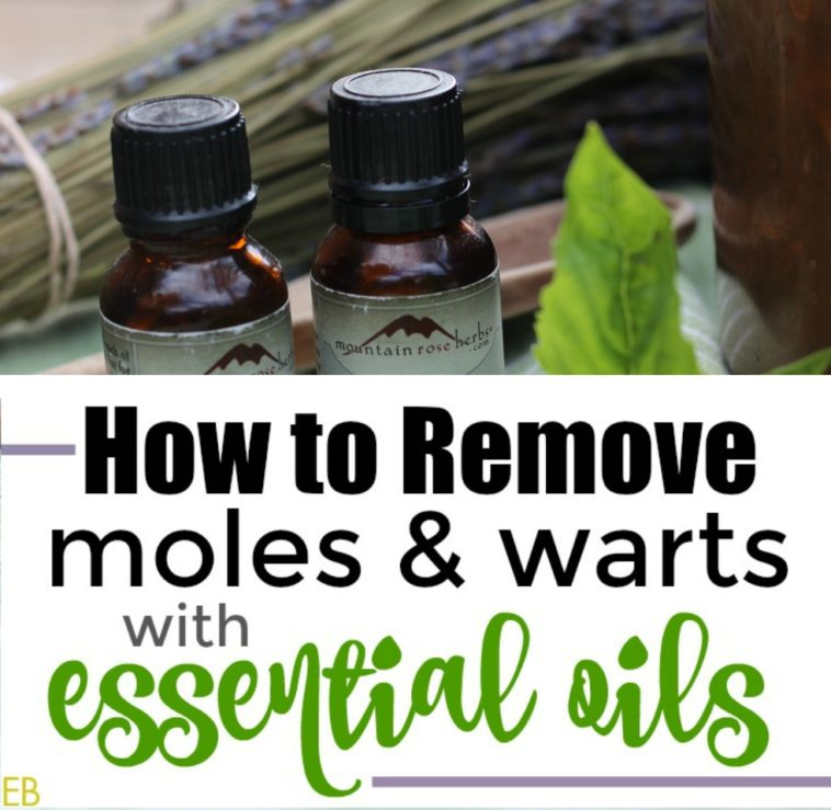 How to Remove Moles and Warts with Essential Oils