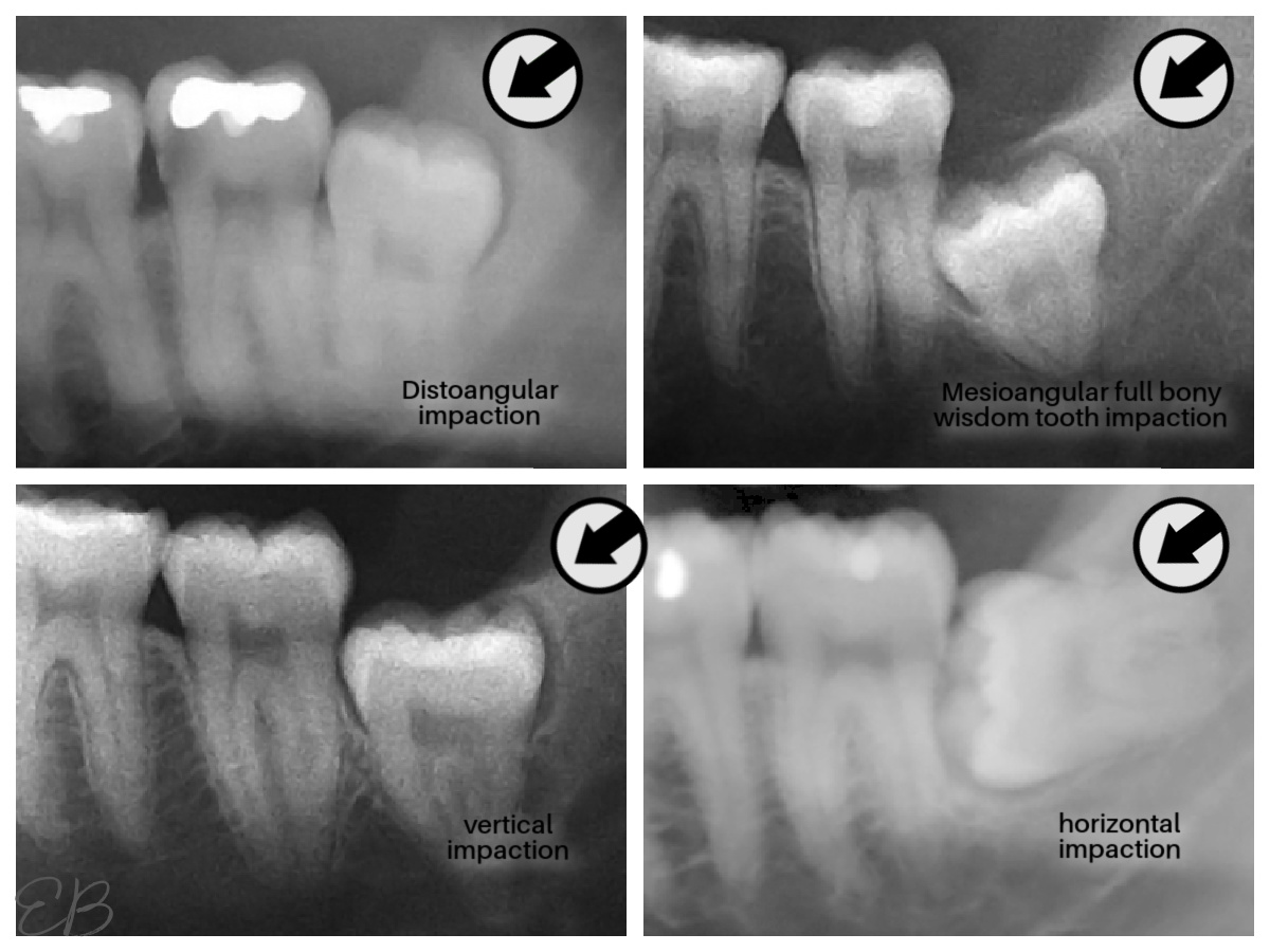 4 photos of impacted 3rd molars
